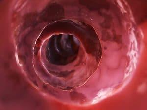Entzündungen im Darm schwächen die Darmbarriere. Dadurch gelangen Schadstoffe in den Blutkreislauf, Entzündungszellen können in alle Körperregionen vordringen.