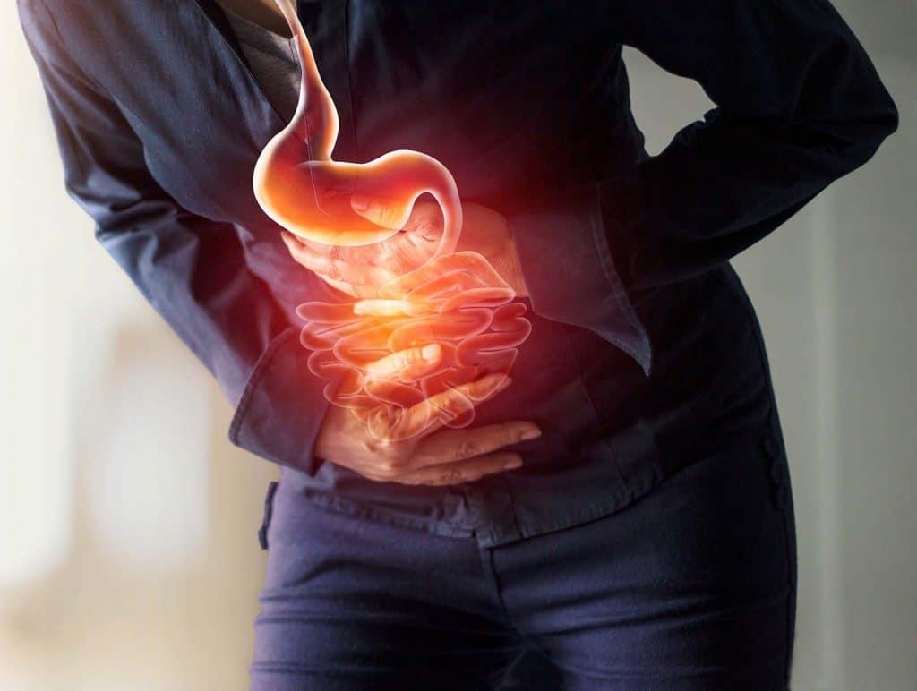 Sodbrennen - die Speiseröhre leidet