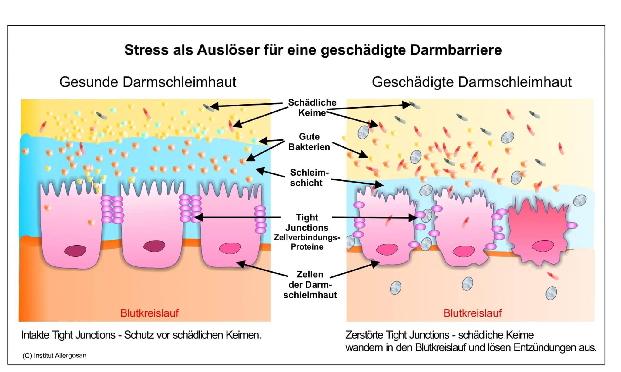 Leaky Gut - Stress als Auslöser für eine geschädigte Darmbarriere